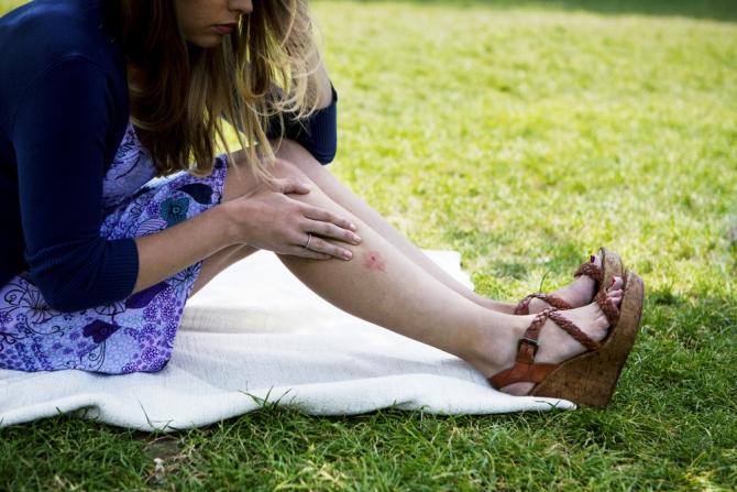 Укусы комаров способны вызвать аллергическую реакцию, а иногда - привести к еще более неприятным последствиям